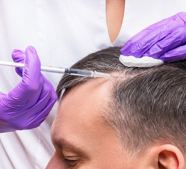 PRP Hair Treatment Services New Jersey
